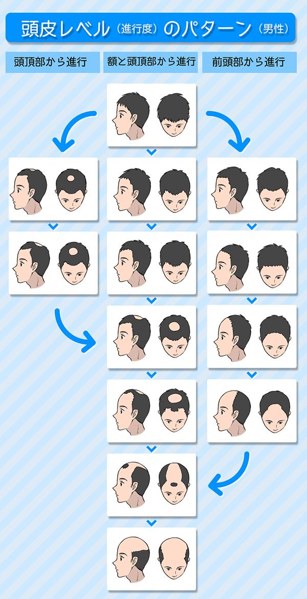 頭皮レベルのパターン(男性)