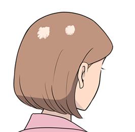 細菌(円形・多発)脱毛症イメージ